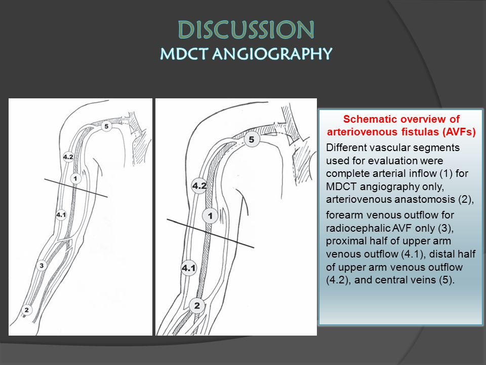 Discussion MDCT ANGIOGRAPHY