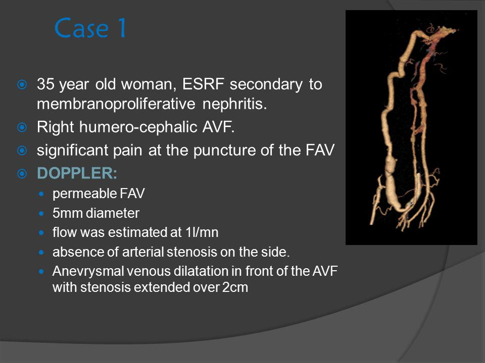 Case 1 35 year old woman, ESRF secondary to membranoproliferative nephritis. Right humero-cephalic AVF.