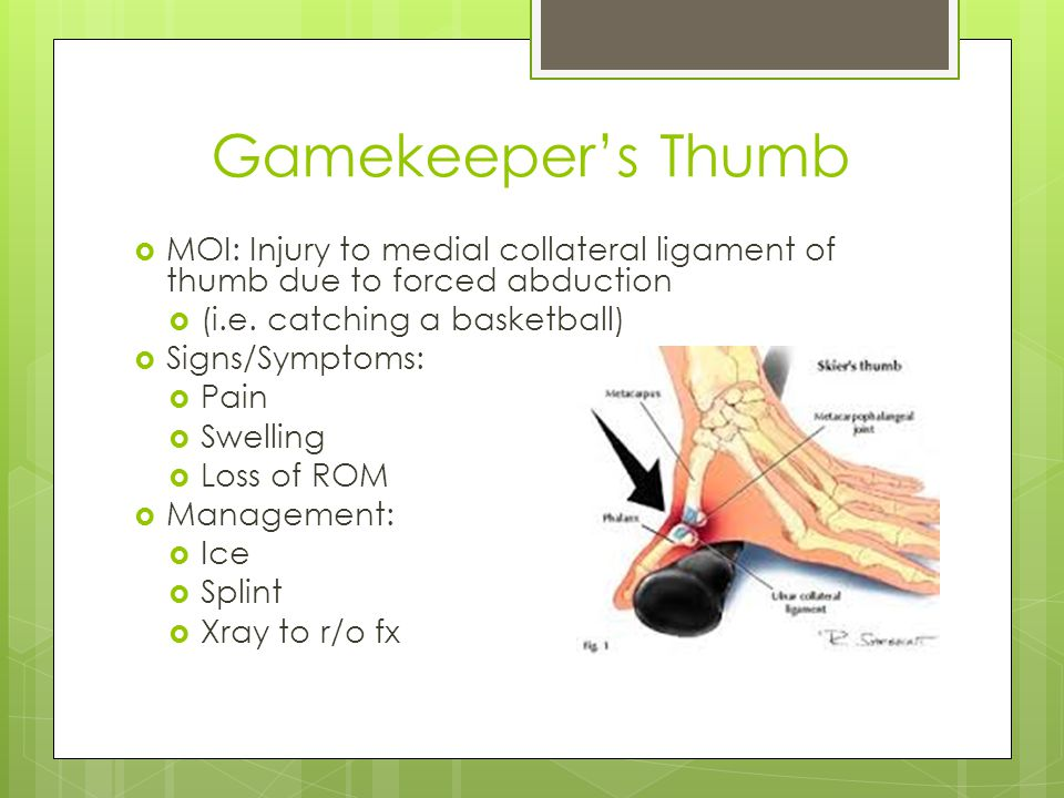 Gamekeeper's Thumb MOI: Injury to medial collateral ligament of thumb due to forced abduction. (i.e. catching a basketball)