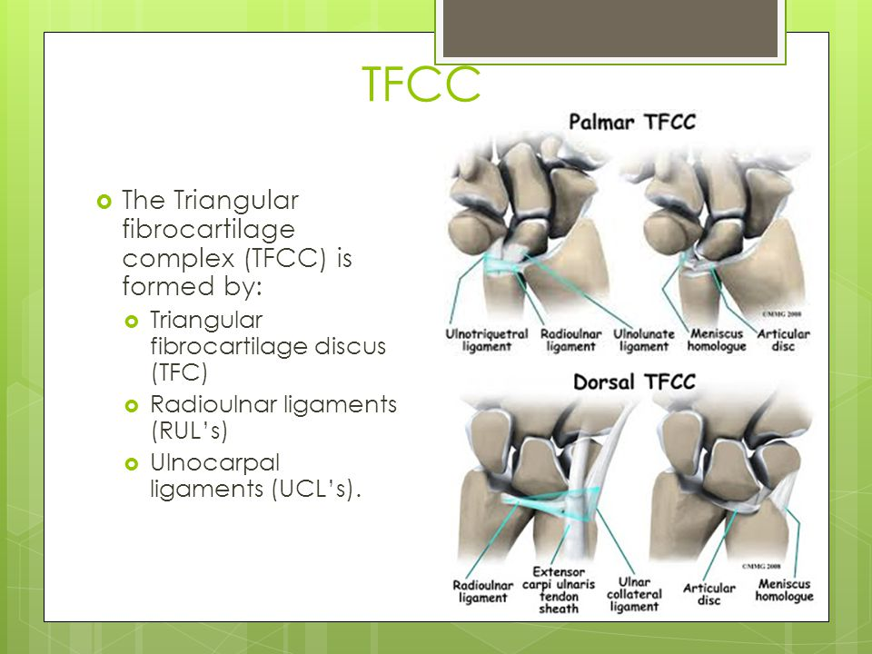 TFCC The Triangular fibrocartilage complex (TFCC) is formed by: