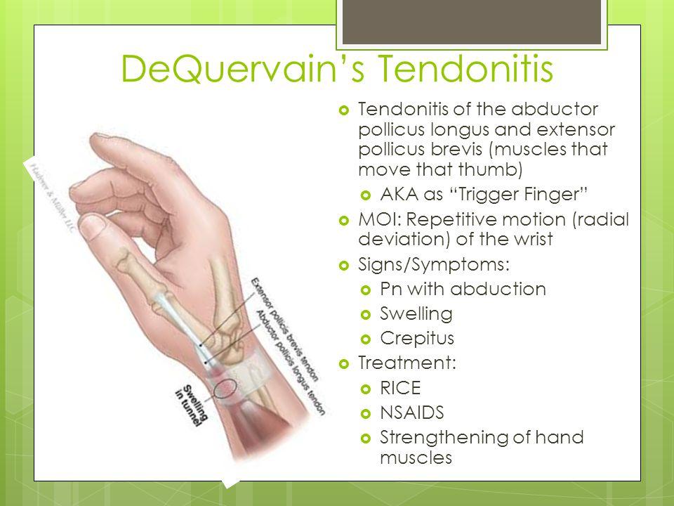 DeQuervain's Tendonitis