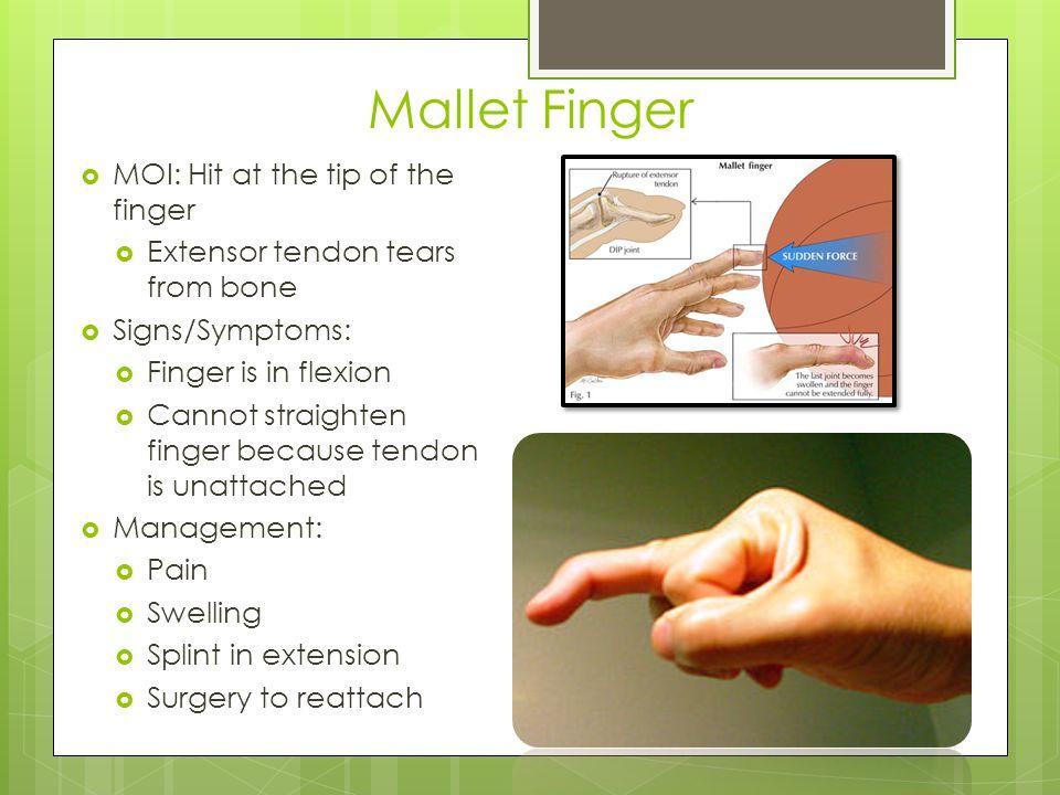 Mallet Finger MOI: Hit at the tip of the finger