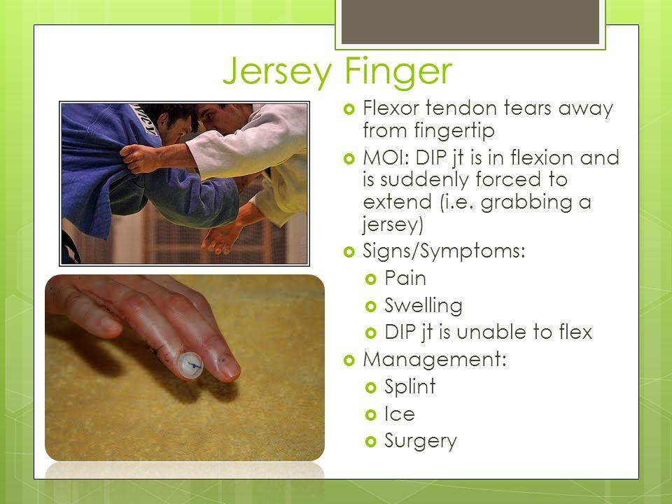 Jersey Finger Flexor tendon tears away from fingertip