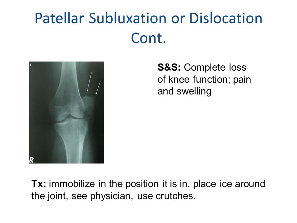Patellar Subluxation or Dislocation Cont.