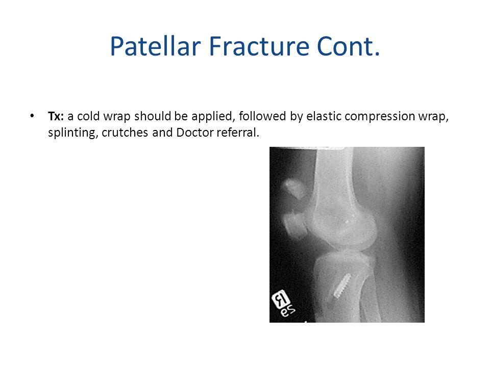 Patellar Fracture Cont.