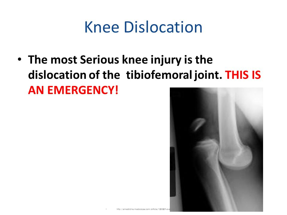Knee Dislocation The most Serious knee injury is the dislocation of the tibiofemoral joint. THIS IS AN EMERGENCY!