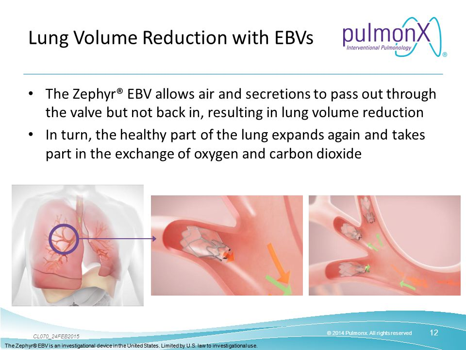 Lung Volume Reduction with EBVs