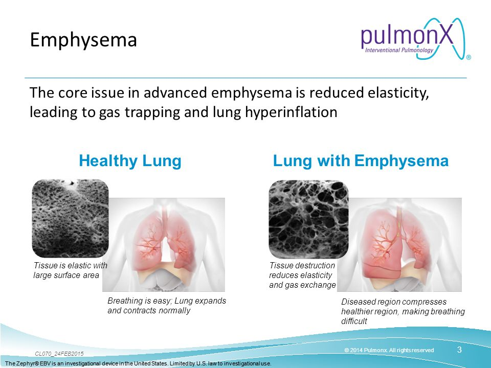 Emphysema The core issue in advanced emphysema is reduced elasticity, leading to gas trapping and lung hyperinflation.