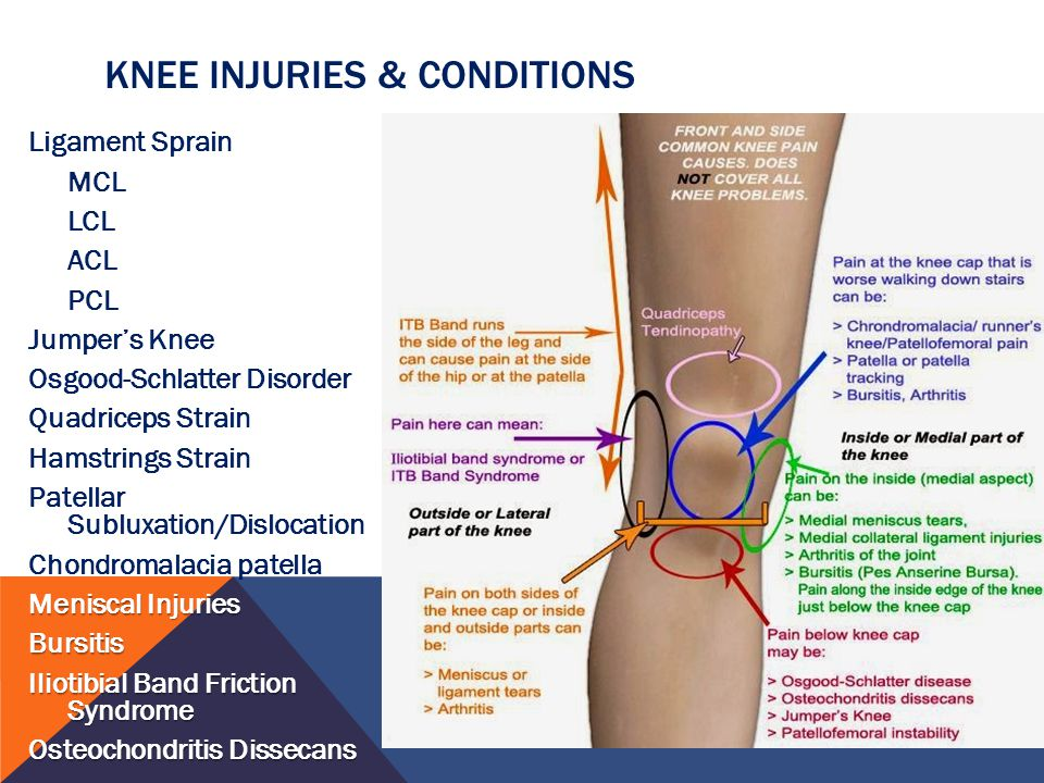 knee injury Knee injuries - learn about the causes, symptoms, diagnosis & treatment from  the merck manuals - medical consumer version.