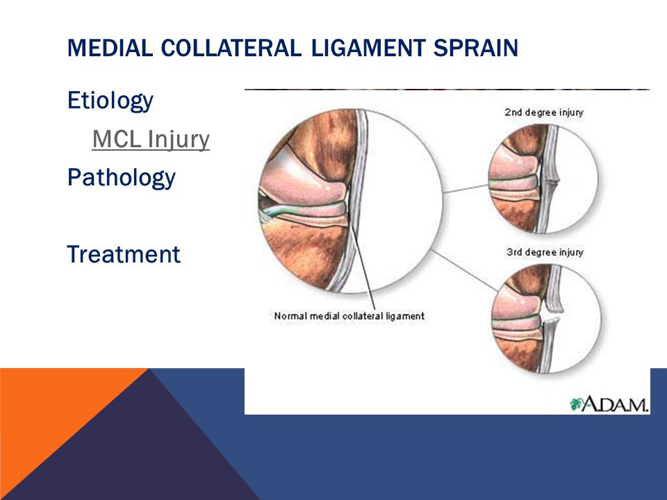Medial Collateral Ligament Sprain