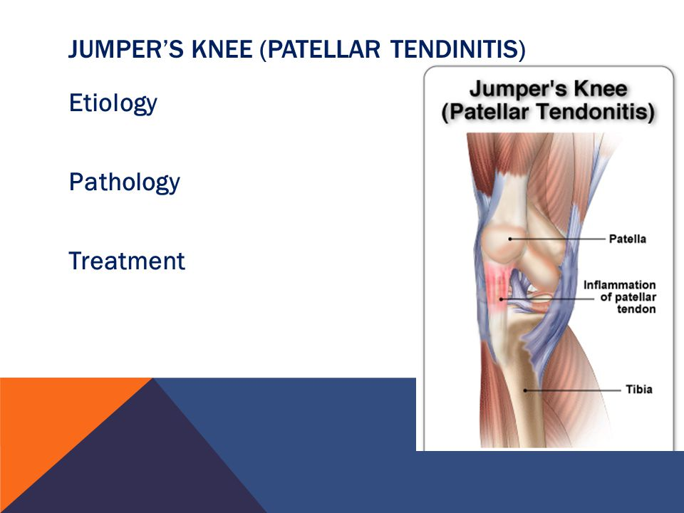 Chapter 9 Knee Injuries. - ppt download