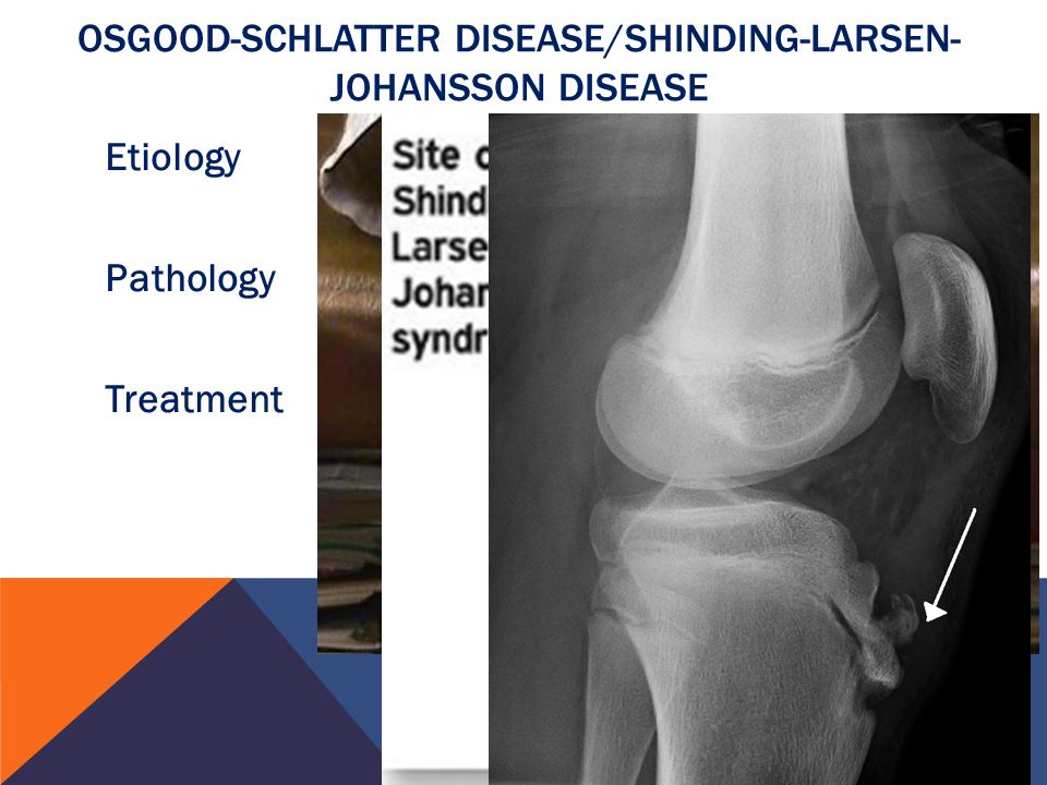 osgood schlatter Osgood-schlatter disease: exercises your kaiser permanente care instructions here are some examples of typical rehabilitation exercises for your condition.