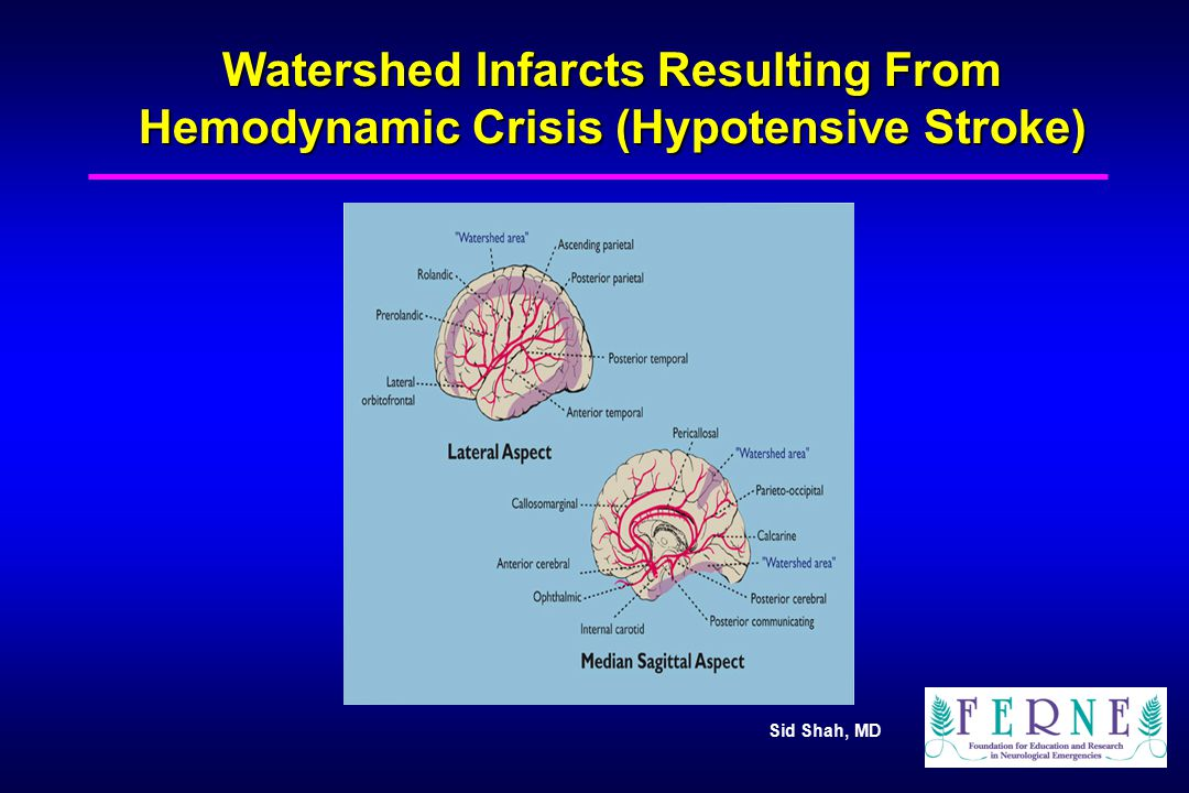 Watershed Infarcts Resulting From Hemodynamic Crisis (Hypotensive Stroke)