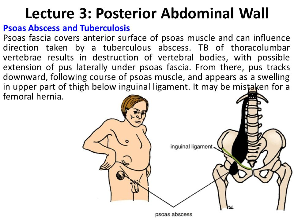 Lecture 3: Posterior Abdominal Wall