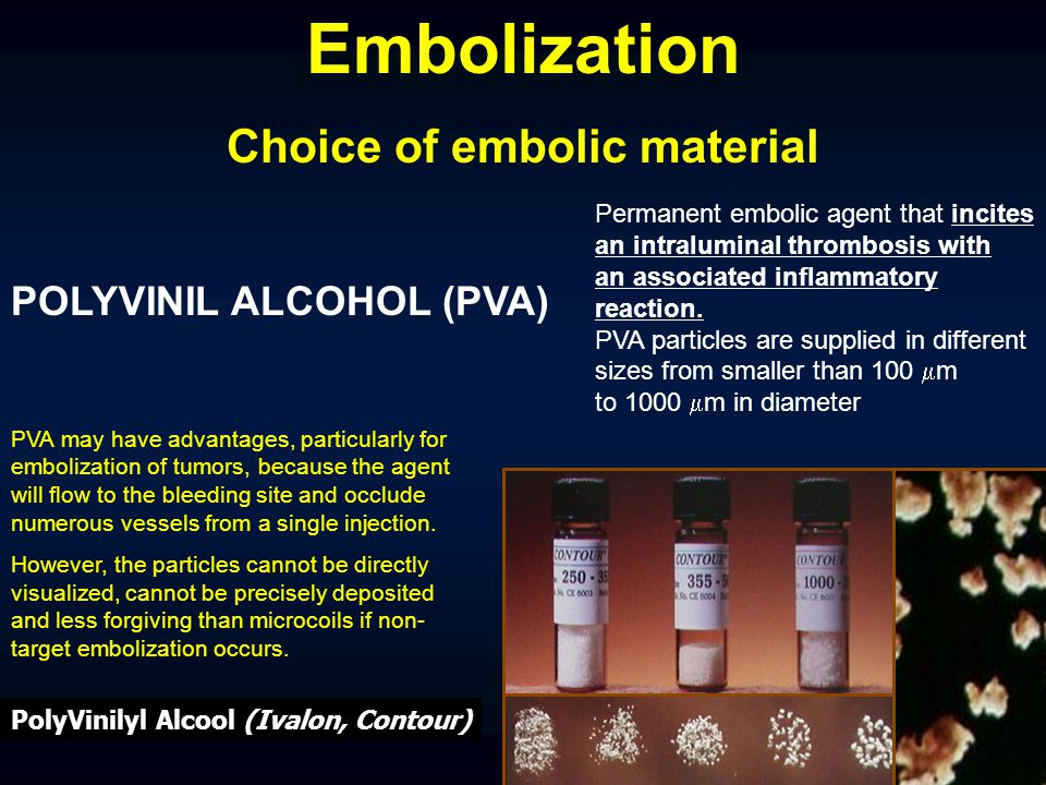 Choice of embolic material