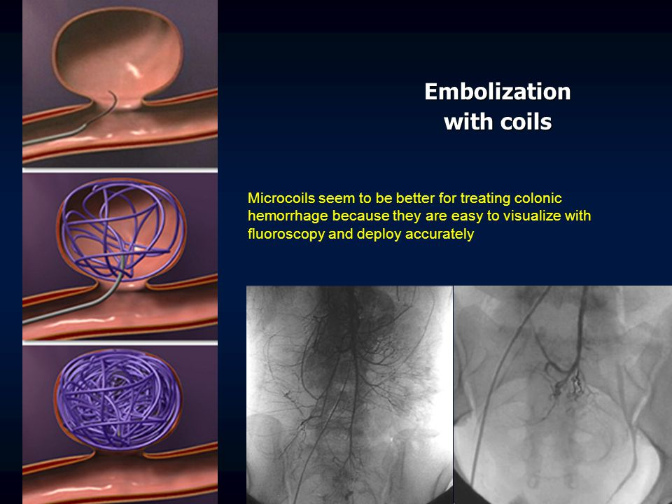 Embolization with coils