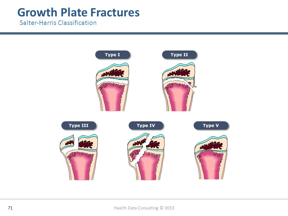 Growth Plate Fractures