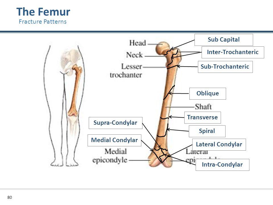 The Femur Fracture Patterns Sub Capital Inter-Trochanteric