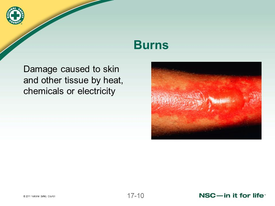 Burns Damage caused to skin and other tissue by heat, chemicals or electricity