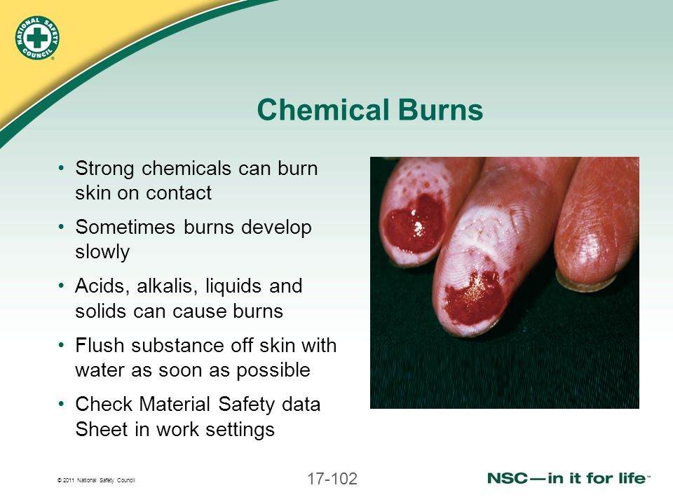Chemical Burns Strong chemicals can burn skin on contact