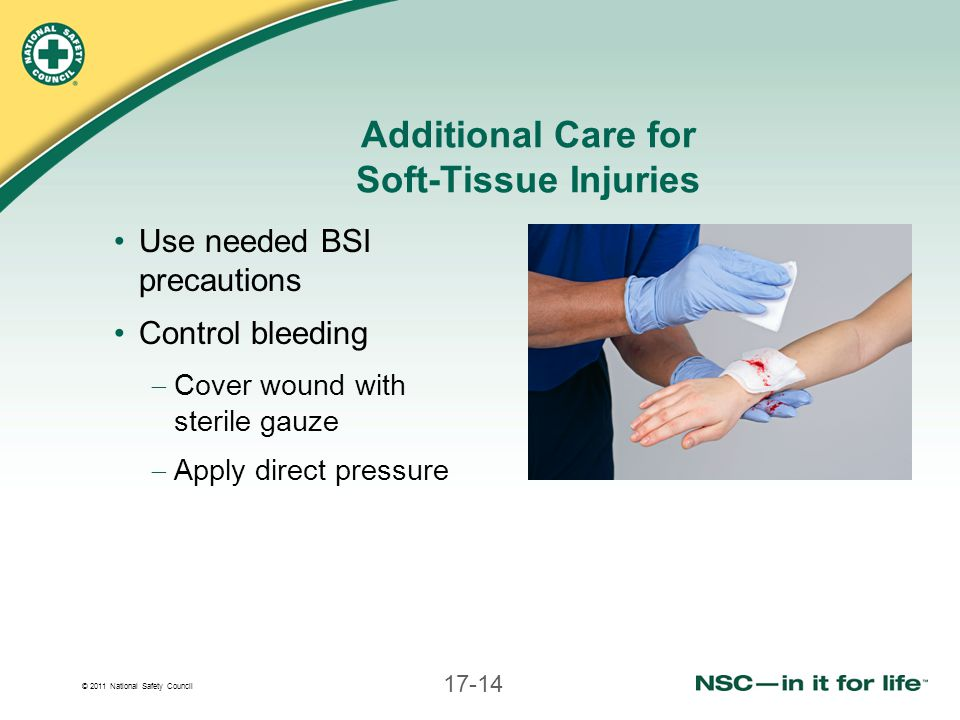 Additional Care for Soft-Tissue Injuries