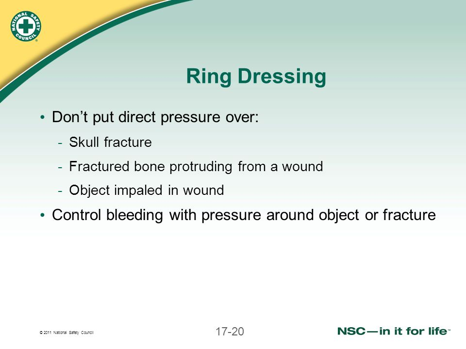 Ring Dressing Don't put direct pressure over: