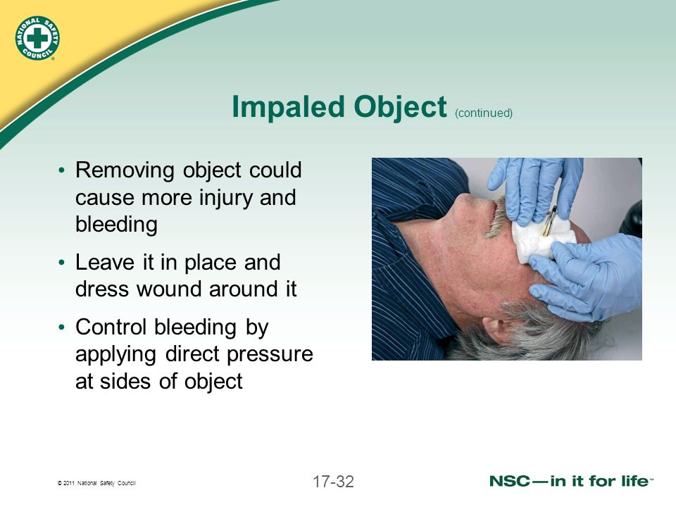 Impaled Object (continued)