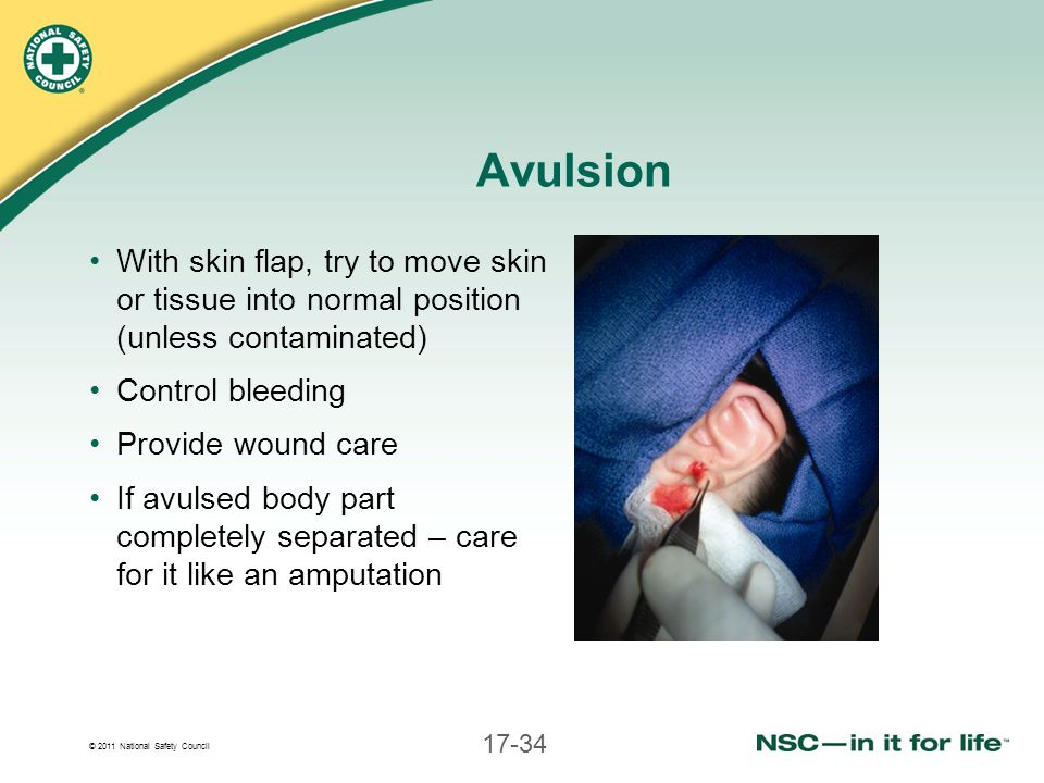 Avulsion With skin flap, try to move skin or tissue into normal position (unless contaminated) Control bleeding.