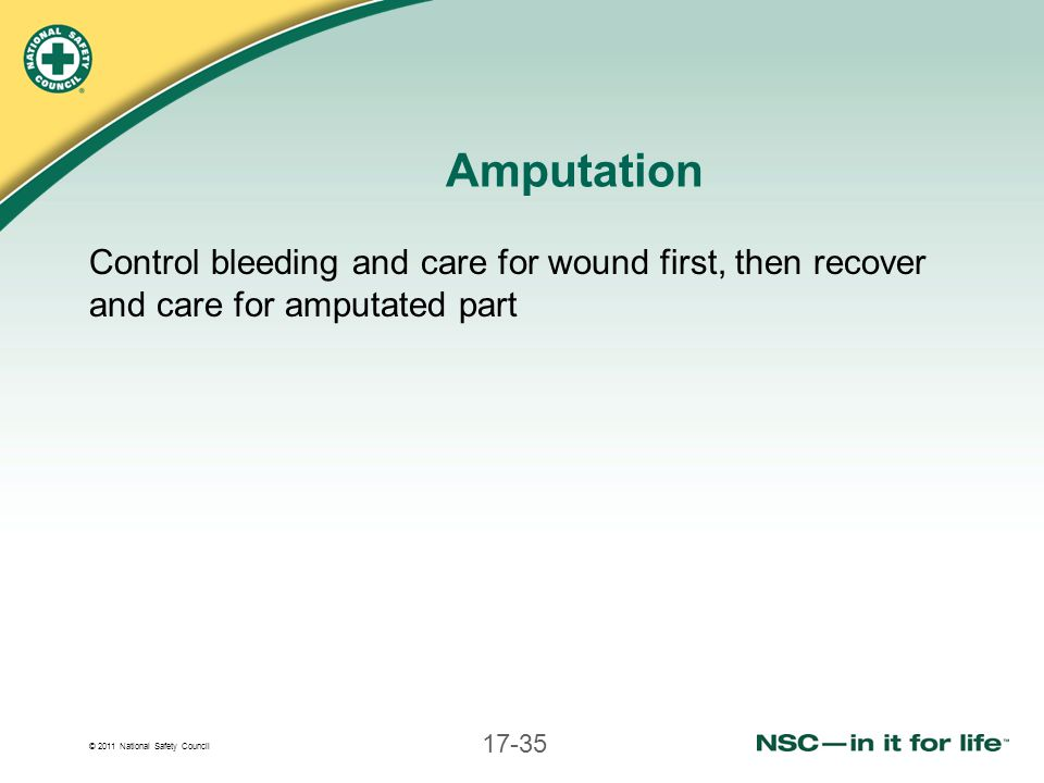 Amputation Control bleeding and care for wound first, then recover and care for amputated part
