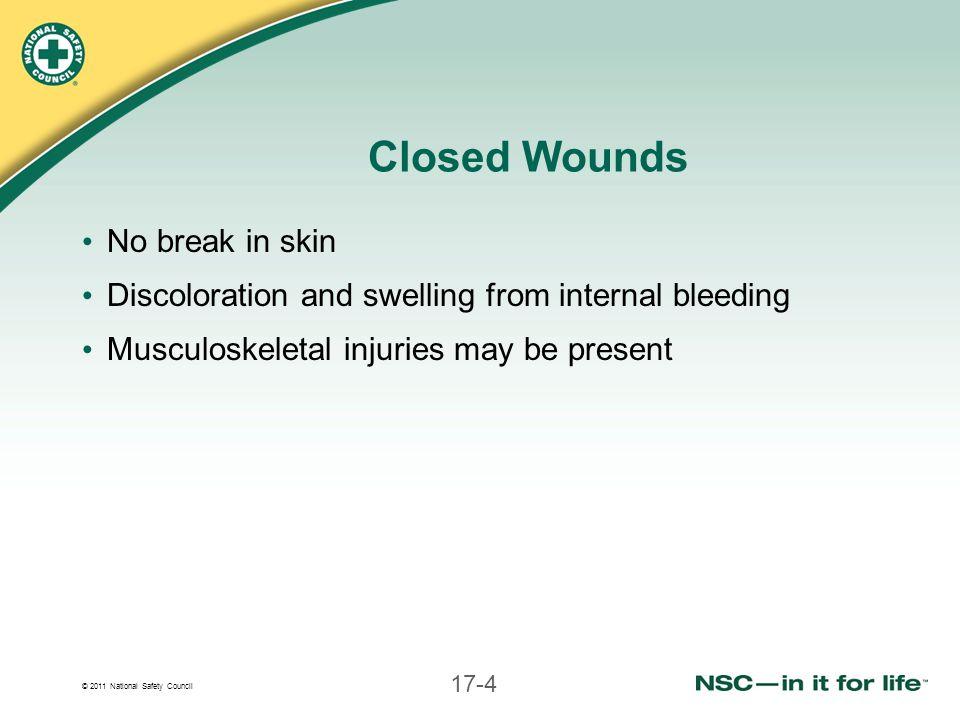 Closed Wounds No break in skin