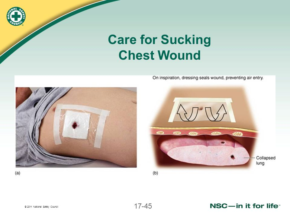 Care for Sucking Chest Wound