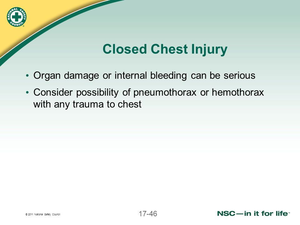 Closed Chest Injury Organ damage or internal bleeding can be serious