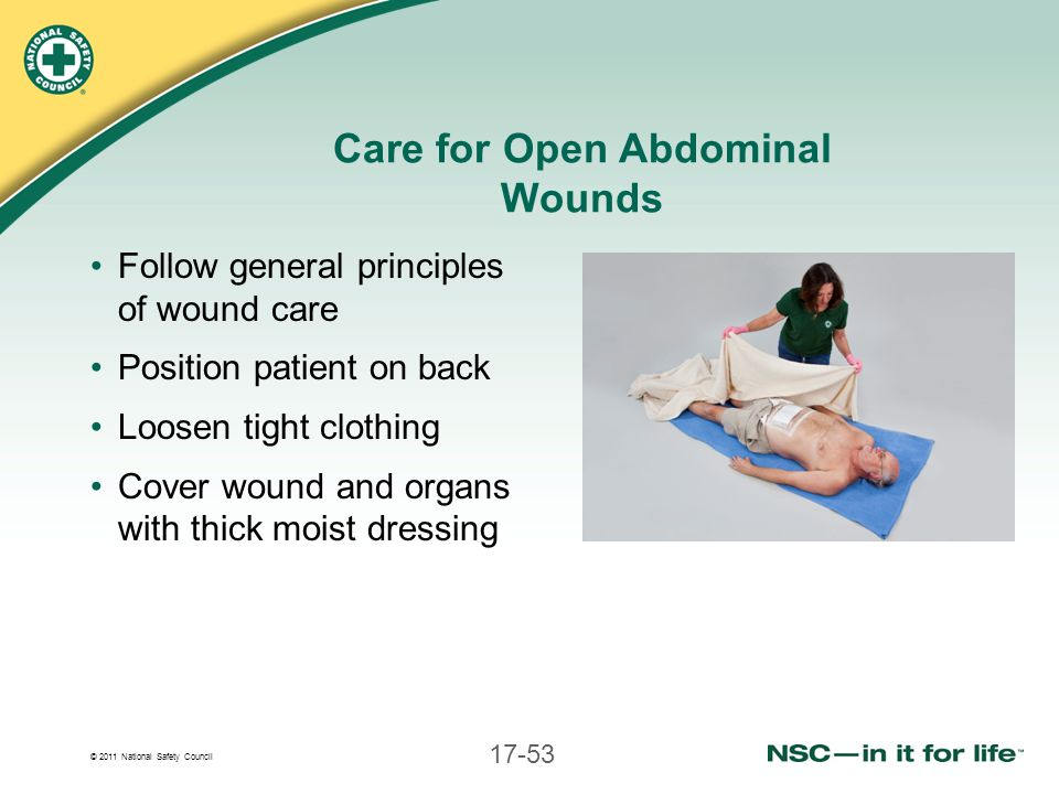 Care for Open Abdominal Wounds
