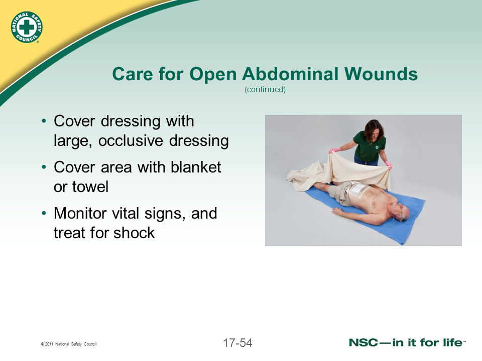 Care for Open Abdominal Wounds (continued)