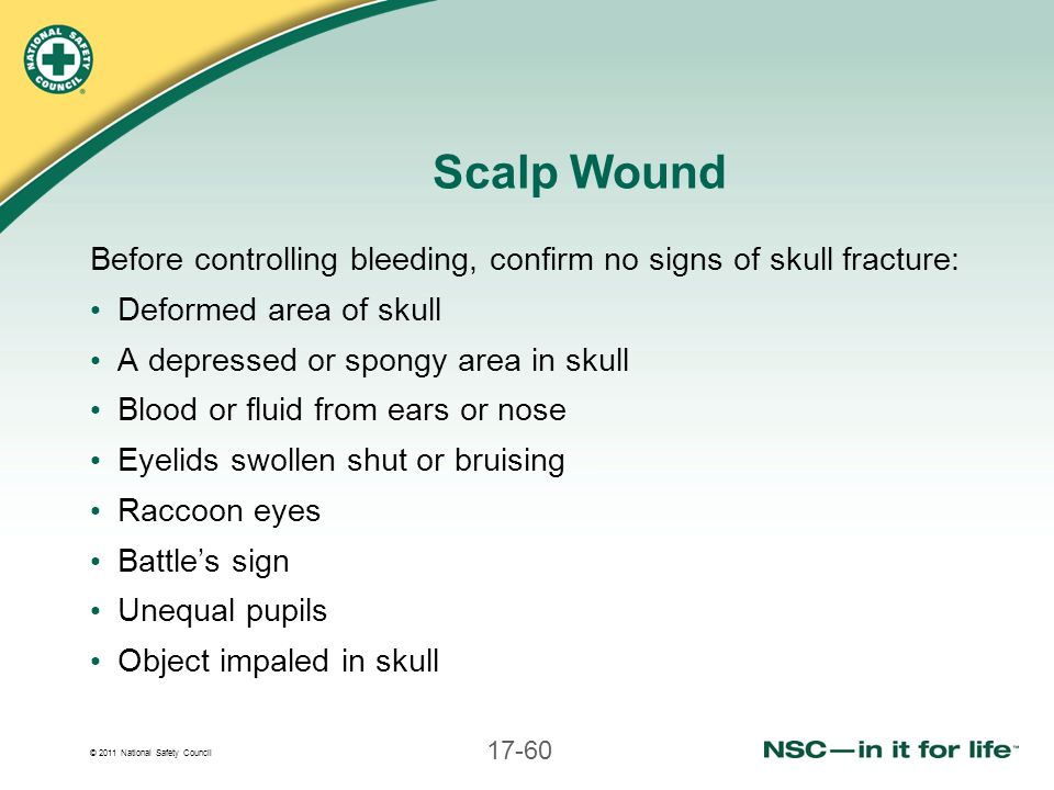 Scalp Wound Before controlling bleeding, confirm no signs of skull fracture: Deformed area of skull.