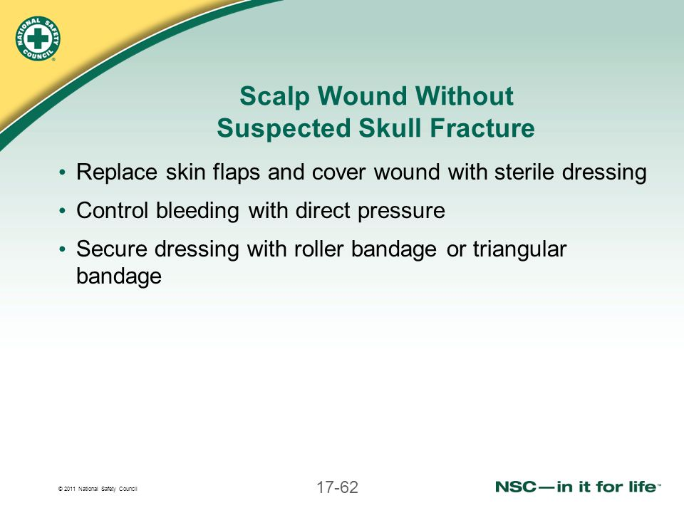 Scalp Wound Without Suspected Skull Fracture