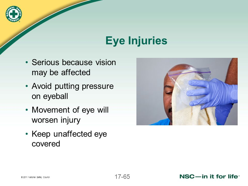 Eye Injuries Serious because vision may be affected