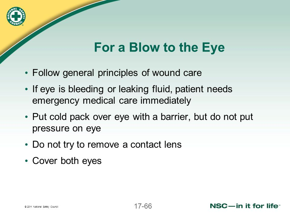 For a Blow to the Eye Follow general principles of wound care