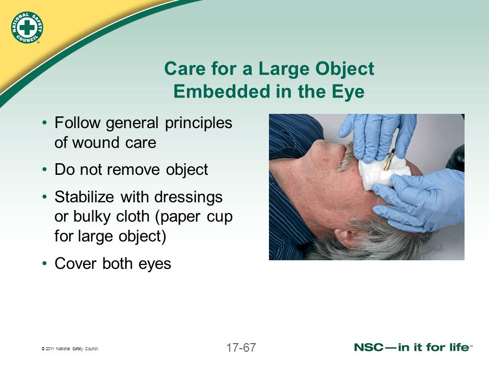 Care for a Large Object Embedded in the Eye