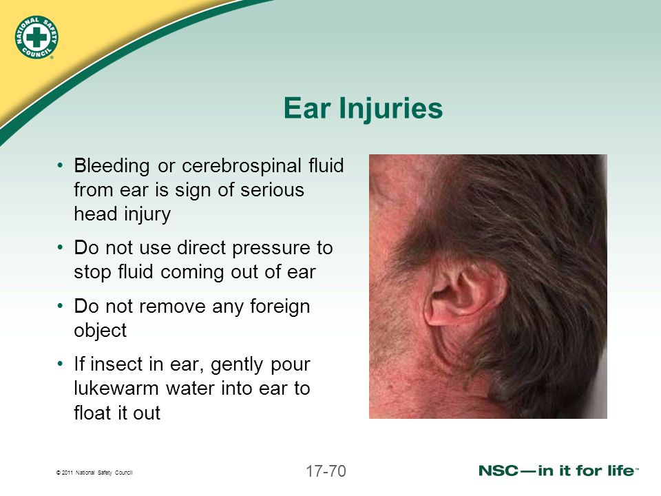 Ear Injuries Bleeding or cerebrospinal fluid from ear is sign of serious head injury. Do not use direct pressure to stop fluid coming out of ear.