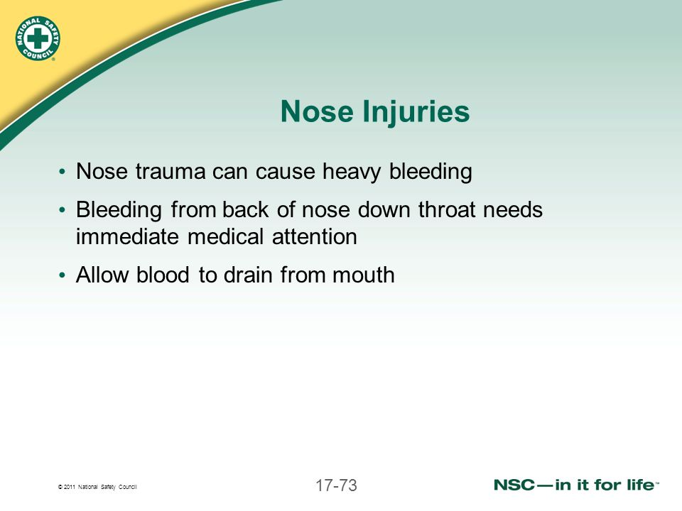 Nose Injuries Nose trauma can cause heavy bleeding
