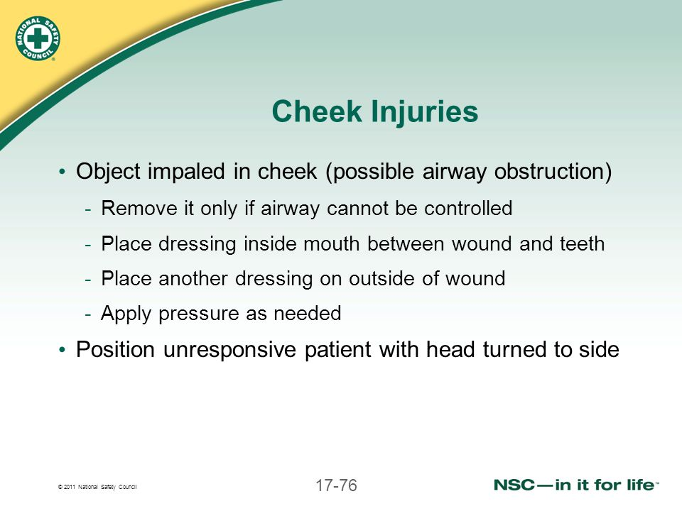Cheek Injuries Object impaled in cheek (possible airway obstruction)