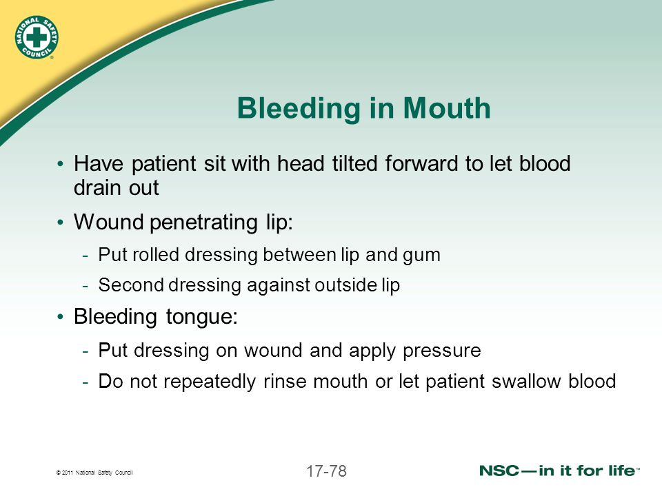 Bleeding in Mouth Have patient sit with head tilted forward to let blood drain out. Wound penetrating lip: