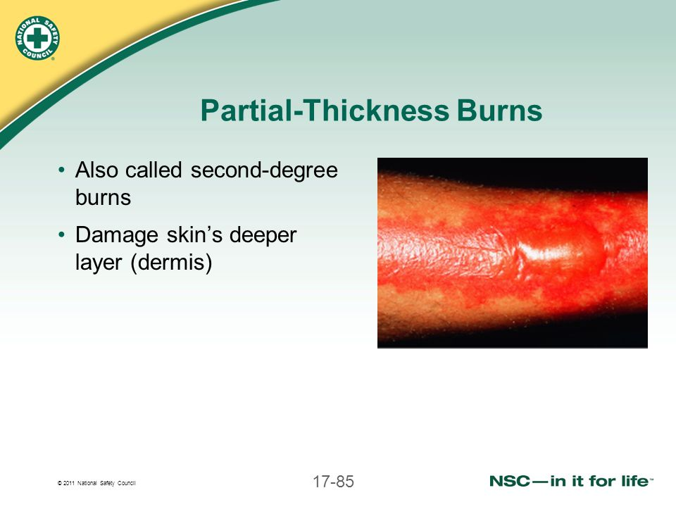 Partial-Thickness Burns