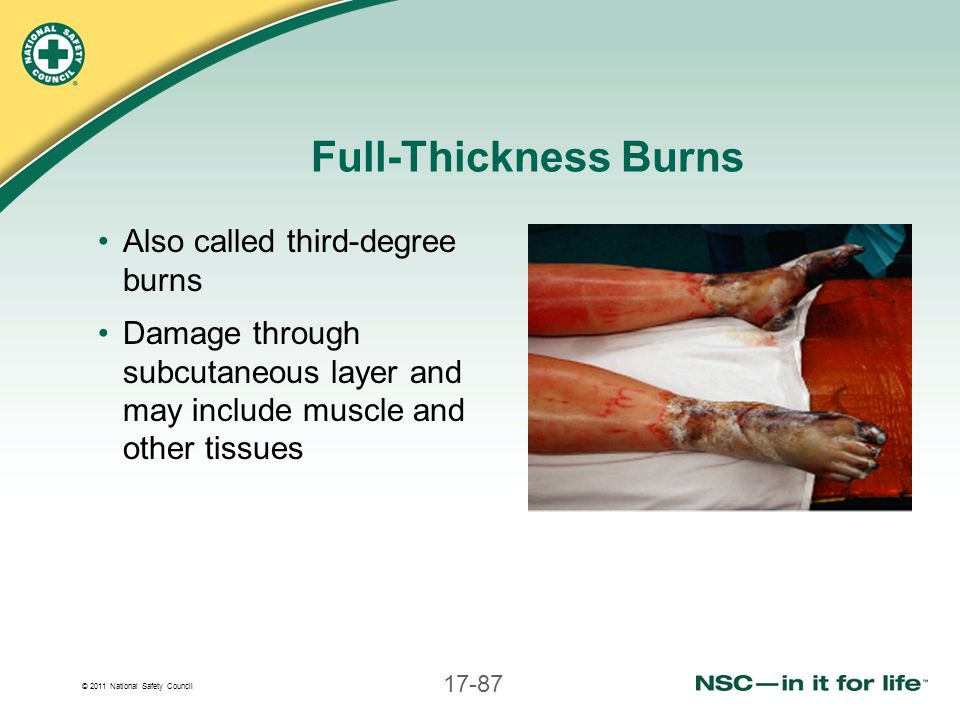 Full-Thickness Burns Also called third-degree burns