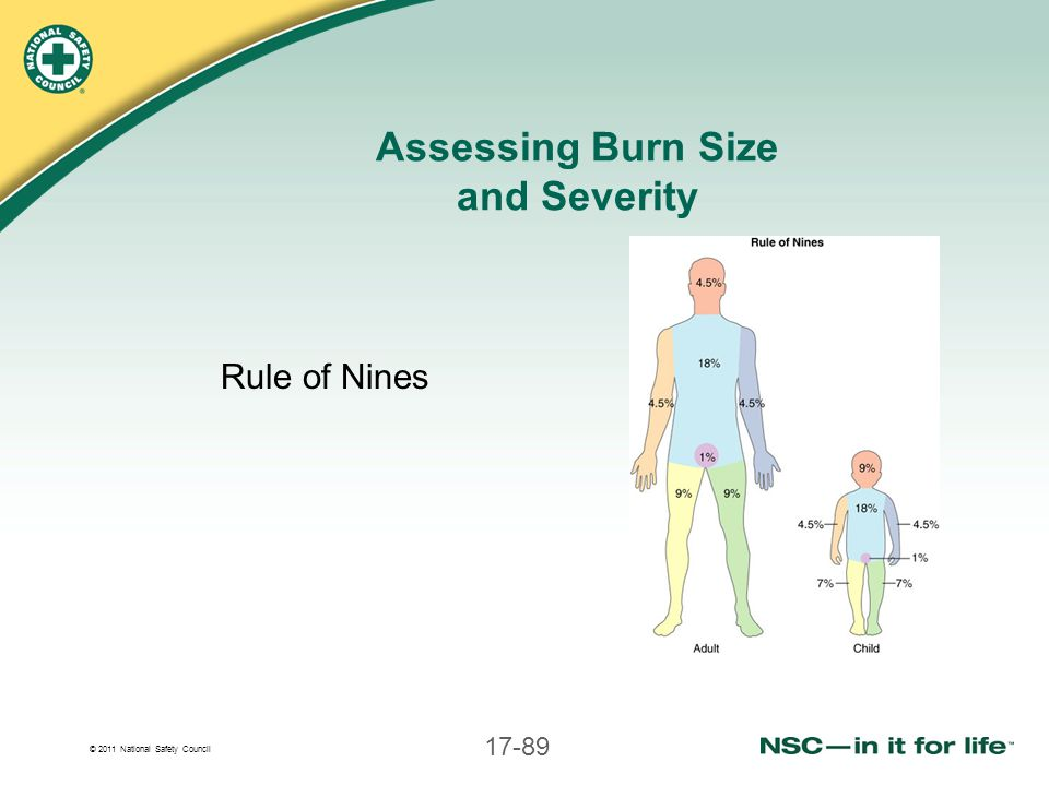 Assessing Burn Size and Severity