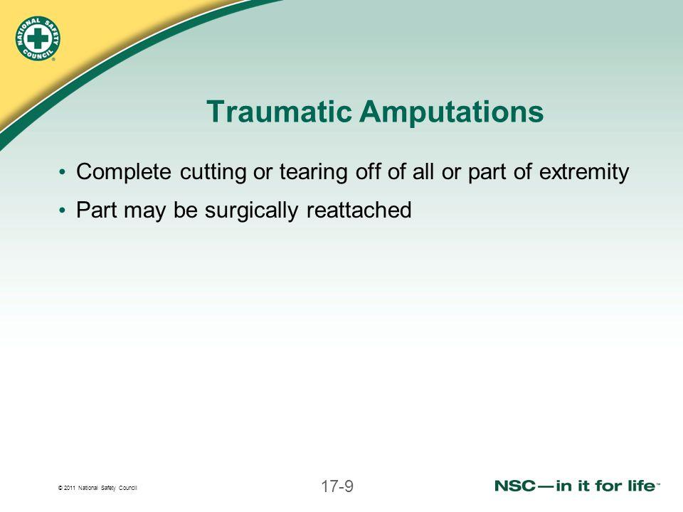 Traumatic Amputations