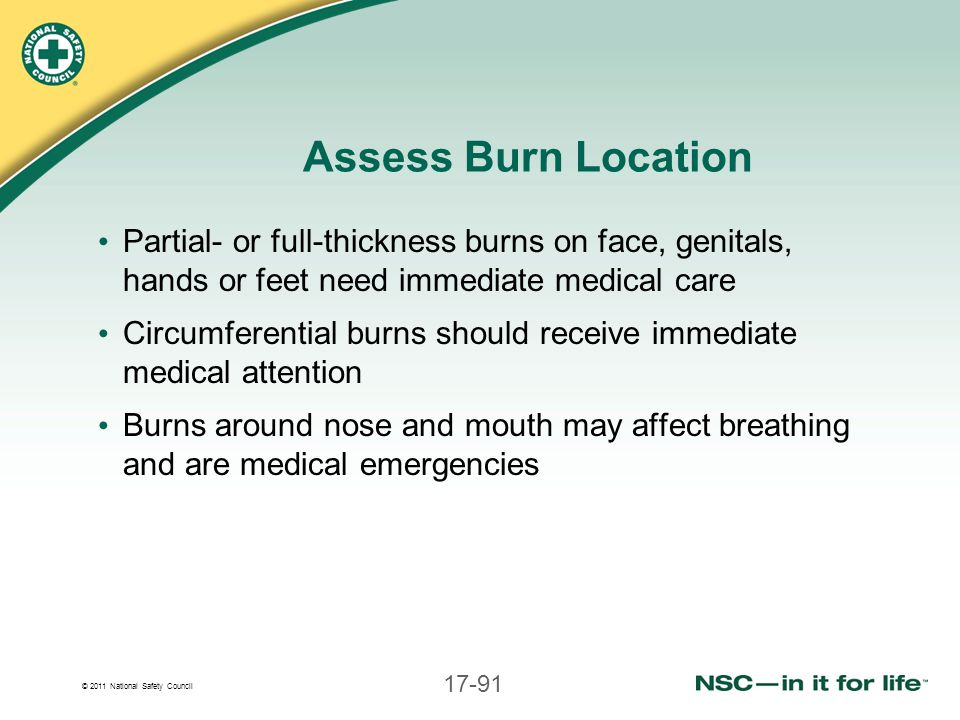 Assess Burn Location Partial- or full-thickness burns on face, genitals, hands or feet need immediate medical care.