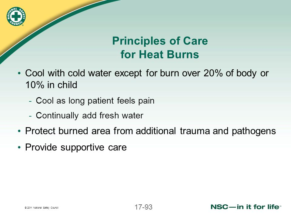 Principles of Care for Heat Burns