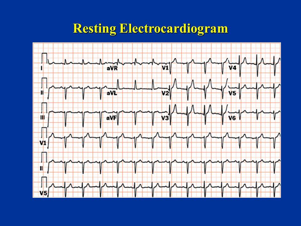 Resting Electrocardiogram
